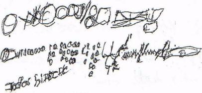 1. ábra - 63 éves férfi grafikuma